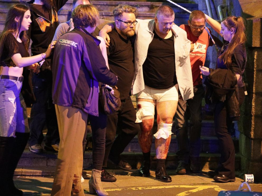 Breaking: 19 Confirmed Dead & 50 Injured in Explosion at Ariana Grande Concert [VIDEO]